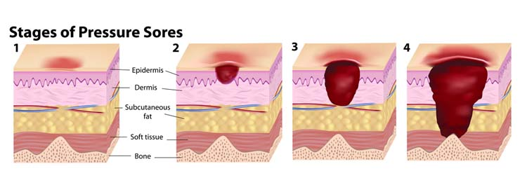 stages-of-pressure-ulcers