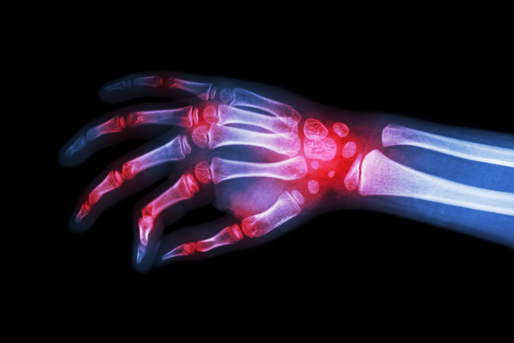 X ray scan with arthritis